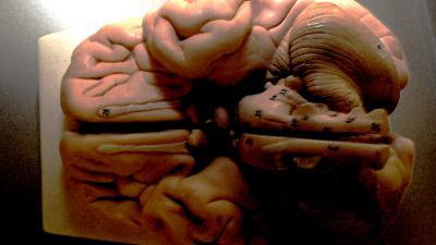 hersenen-model