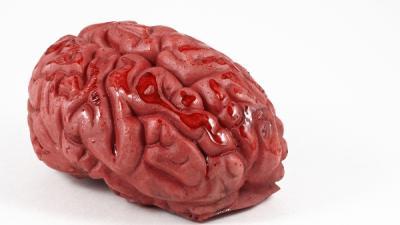 Foto van hersenen