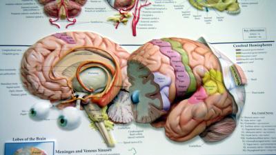 Patiënt met Dissociatieve Identiteitsstoornis kan moeilijk specifieke herinneringen ophalen