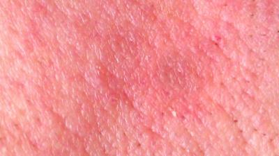 Huidkanker en voorstadium huidkanker geconstateerd bij bezoekers Martini Ziekenhuis