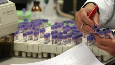 laboratorium-reageerbuisjes