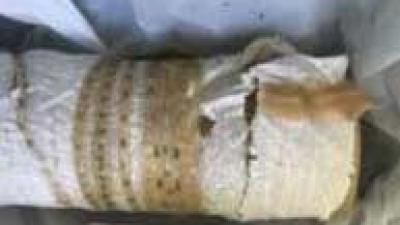 Man trekt zelf 1,65 meter lange lintworm uit zijn lichaam