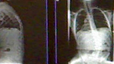 röntgenfoto-longen
