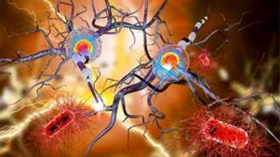 Nederlandse onderzoekers vinden na 30 jaar 4e Alzheimer-gen