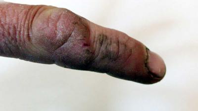 Kidnappers in Amstelveense ontvoeringszaak knipte vinger af van slachtoffer