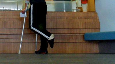 Foto van man met gebroken been in ziekenhuis   Archief EHF